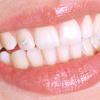 _100_sourire_avec_bijou